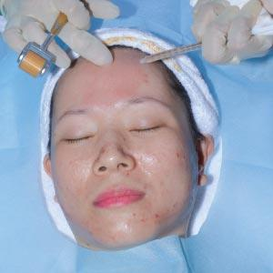 Inject the stem cells into the treatment areas.
