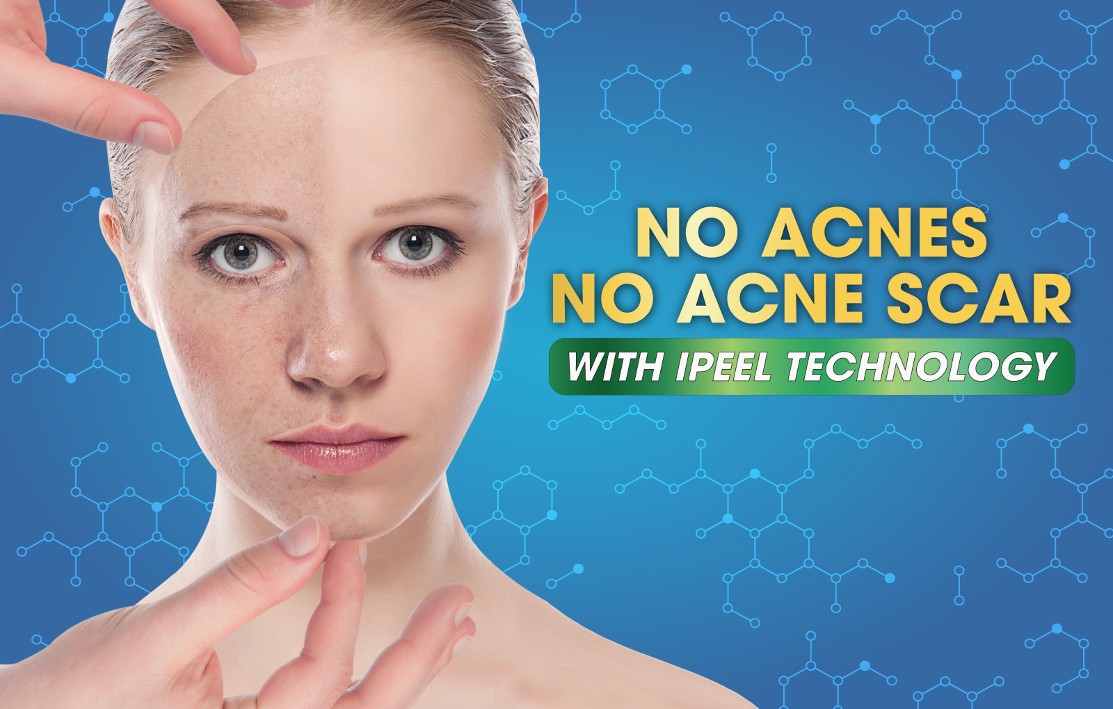 ACNE TREATMENT BY PEELING TECHNOLOGY