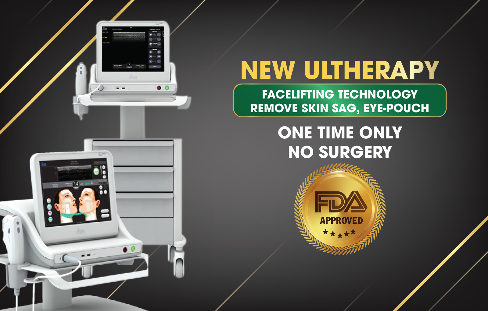V-LINE FACELIFT BY NEW ULTHERAPY TECHNOLOGY