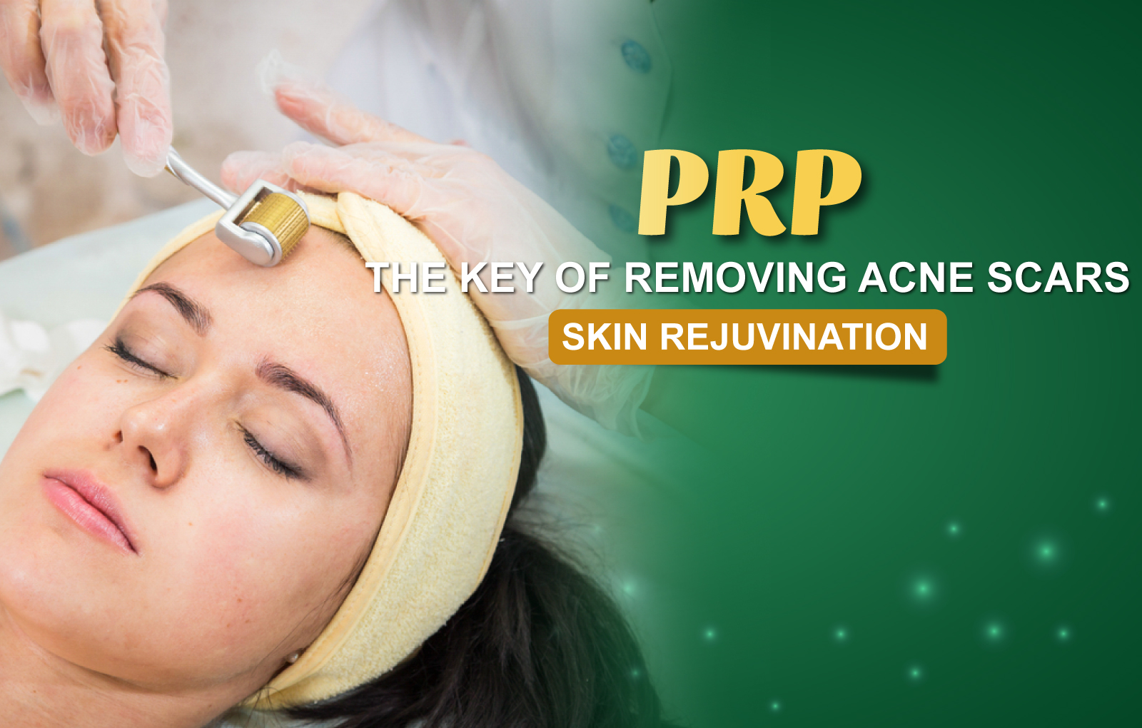 SKIN REJUVENATION - ACNES SCAR TREATMENT BY PRP TECHNOLOGY